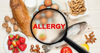 These foods are avoided for Asthma patients