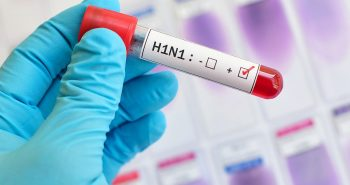 New swine flu found in china  afraid to be a pandemic